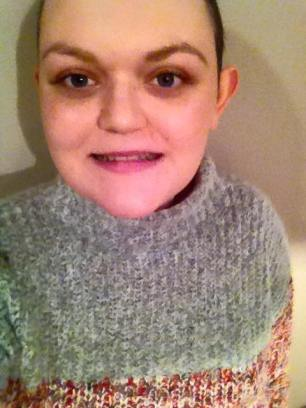 November 2015- after I shaved my hair off.